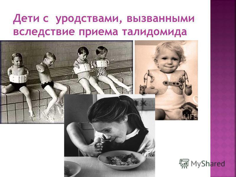 Дети с уродствами, вызванными вследствие приема талидомида