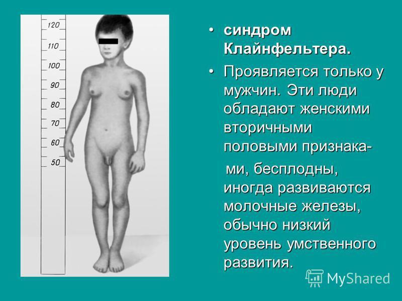 синдром Клайнфельтера.синдром Клайнфельтера. Проявляется только у мужчин. Эти люди обладают женскими вторичными половыми признака-Проявляется только у мужчин. Эти люди обладают женскими вторичными половыми признака- ми, бесплодны, иногда развиваются
