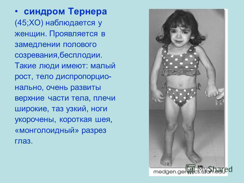 синдром Тернера (45;ХО) наблюдается у женщин. Проявляется в замедлении полового созревания,бесплодии. Такие люди имеют: малый рост, тело диск пропорционально, очень развиты верхние части тела, плечи широкие, таз узкий, ноги укорочены, короткая шея, «