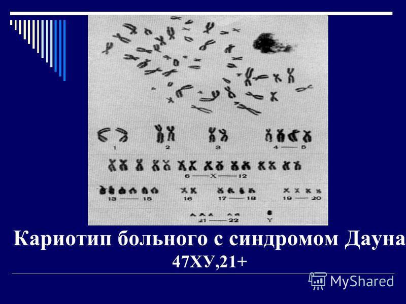 Классификация мутационной изменчивости 1. Геномные мутации - изменение числа хромосом в кариотипе 1.1. Полиплоидия - увеличение числа хромосом, кратно гаплоидного набора ( n ). Например, 2n + n = 3n ; 2n +2 n = 4n 1.2. Гетероплоидия ( анеуплоидия ) -