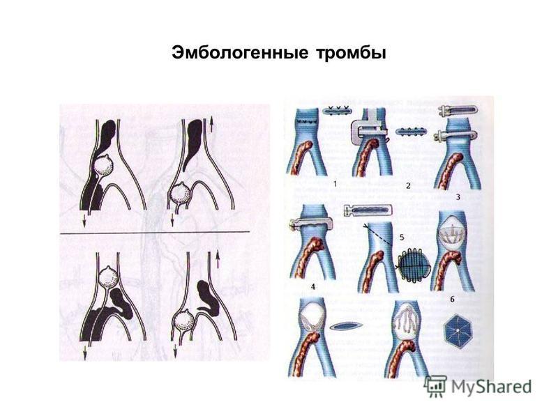 Эмбологенные тромбы