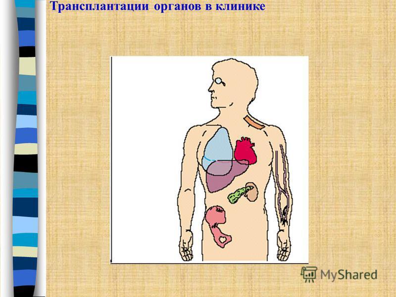 Трансплантации органов в клинике