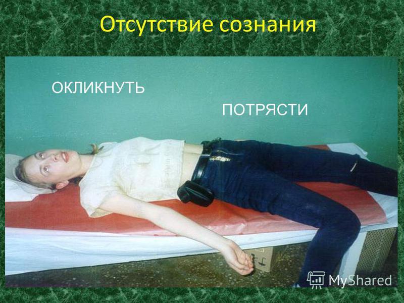 Признаки клинической смерти Отсутствие сознания Отсутствие дыхания Отсутствие сердцебиения и пульсации на сонной артерии Максимальное расширение зрачков и отсутствие их реакции на свет Отсутствие реакции на болевые раздражители Изменение окраски кожн