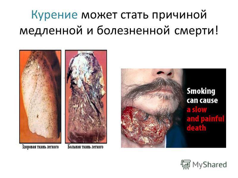 Курение может стать причиной медленной и болезненной смерти!