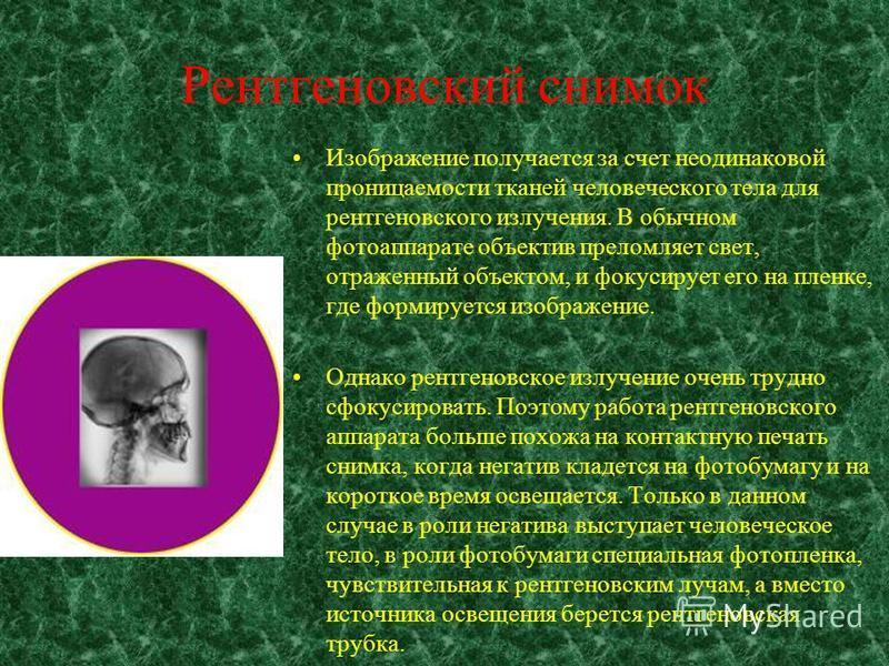 Земное применение Электронная лампа, служащая источником мягкого рентгеновского излучения. Между двумя электродами внутри запаянной вакуумной колбы прикладывается напряжение 10–100 кВ. Под действием этого напряжения электроны разгоняются до энергии 1