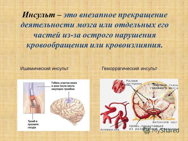 Инсульт – это внезапное прекращение деятельности мозга или отдельных его частей из-за острого нарушения кровообращения или кровоизлияния. Ишемический инсульт Геморрагический инсульт