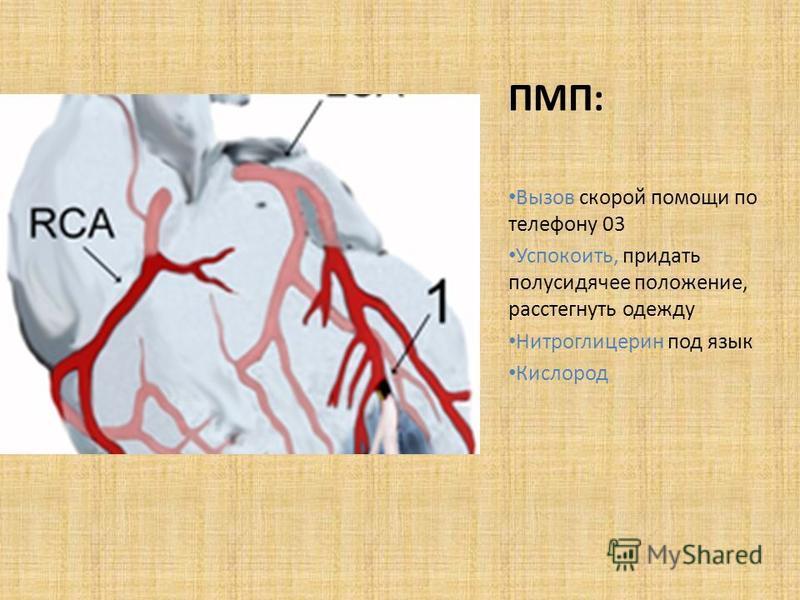 ПМП: Вызов скорой помощи по телефону 03 Успокоить, придать полусидячее положение, расстегнуть одежду Нитроглицерин под язык Кислород