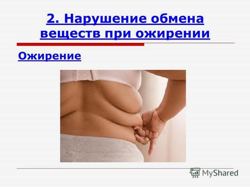 2. Нарушение обмена веществ при ожирении Ожирение
