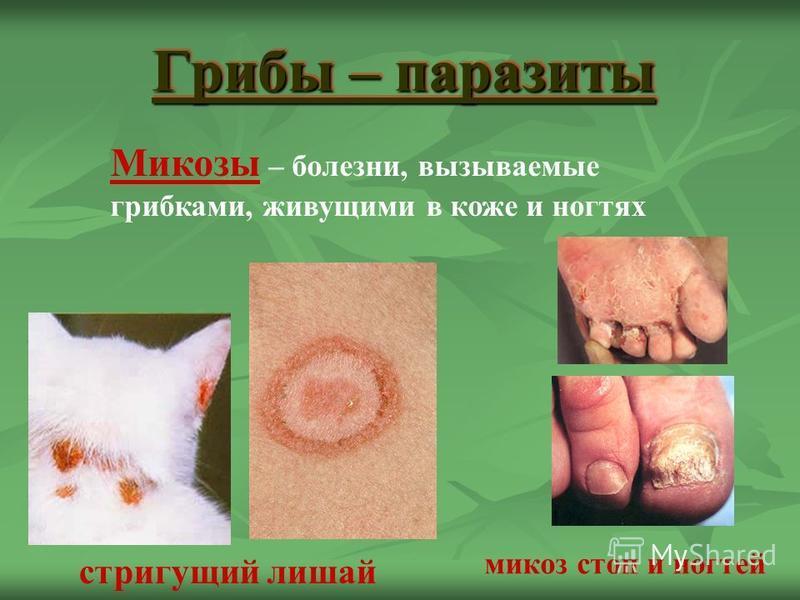 Грибы – паразиты стригущий лишай микоз стоп и ногтей Микозы – болезни, вызываемые грибками, живущими в коже и ногтях
