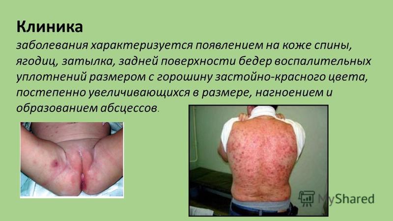 Клиника заболевания характеризуется появлением на коже спины, ягодиц, затылка, задней поверхности бедер воспалительных уплотнений размером с горошину застойно-красного цвета, постепенно увеличивающихся в размере, нагноением и образованием абсцессов.