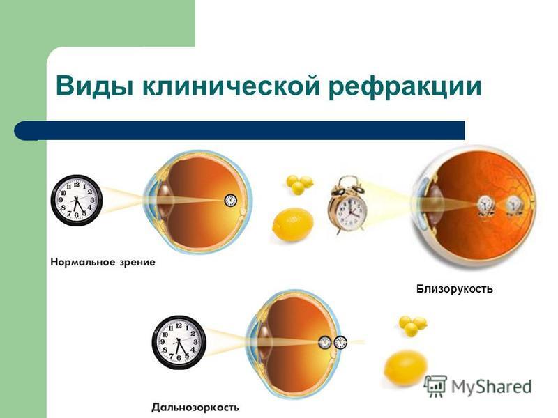 Виды клинической рефракции Близорукость