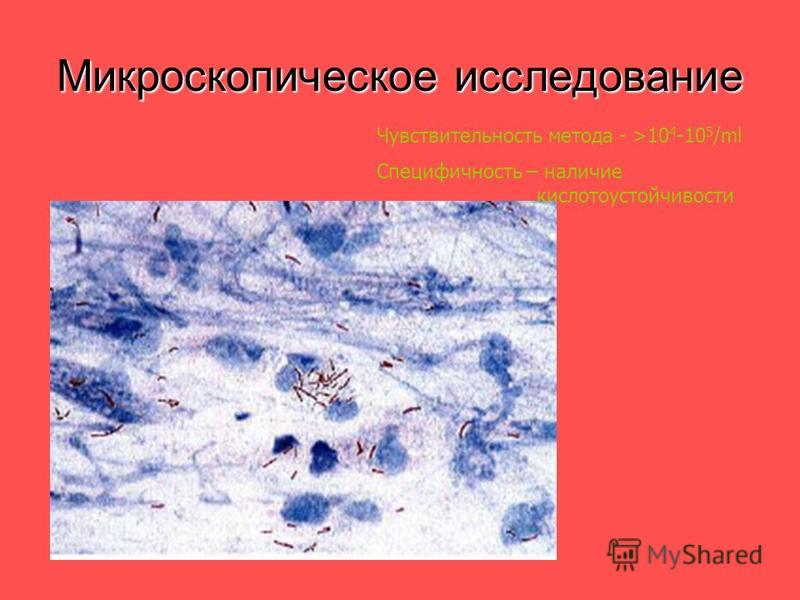 Микроскопическое исследование Чувствительность метода - >10 4 -10 5 /ml Специфичность – наличие кислотоустойчивости