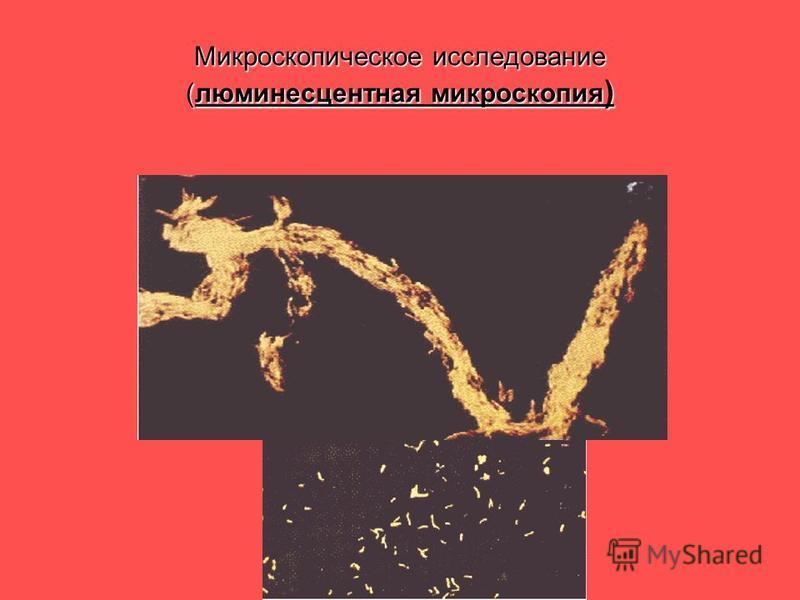 Микроскопическое исследование (люминесцентная микроскопия )