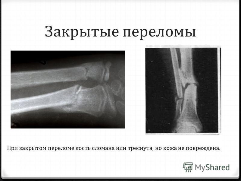 Закрытые переломы При закрытом переломе кость сломана или треснута, но кожа не повреждена.