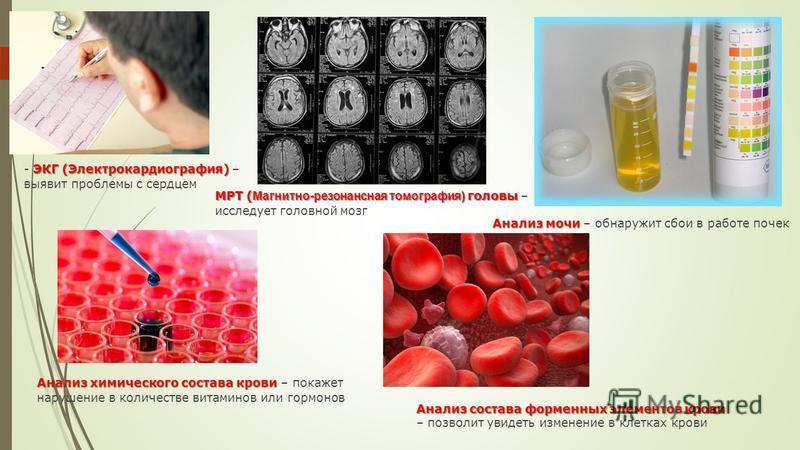 ЭКГ (Электрокардиография) - ЭКГ (Электрокардиография) – выявит проблемы с сердцем МРТ ( Магнитно-резонансная томография) головы МРТ ( Магнитно-резонансная томография) головы – исследует головной мозг Анализ мочи Анализ мочи – обнаружит сбои в работе
