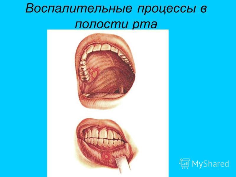 Воспалительные процессы в полости рта
