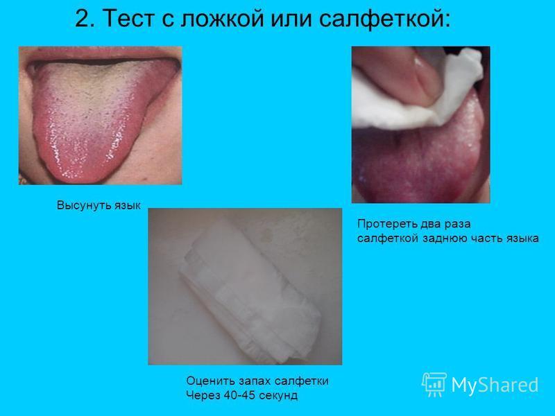 2. Тест с ложкой или салфеткой: Высунуть язык Протереть два раза салфеткой заднюю часть языка Оценить запах салфетки Через 40-45 секунд