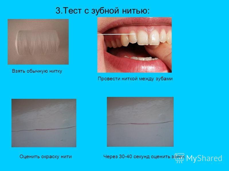 3. Тест с зубной нитью: Взять обычную нитку Провести ниткой между зубами Оценить окраску нити Через 30-40 секунд оценить запах
