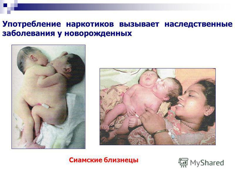 Сиамские близнецы Употребление наркотиков вызывает наследственные заболевания у новорожденных