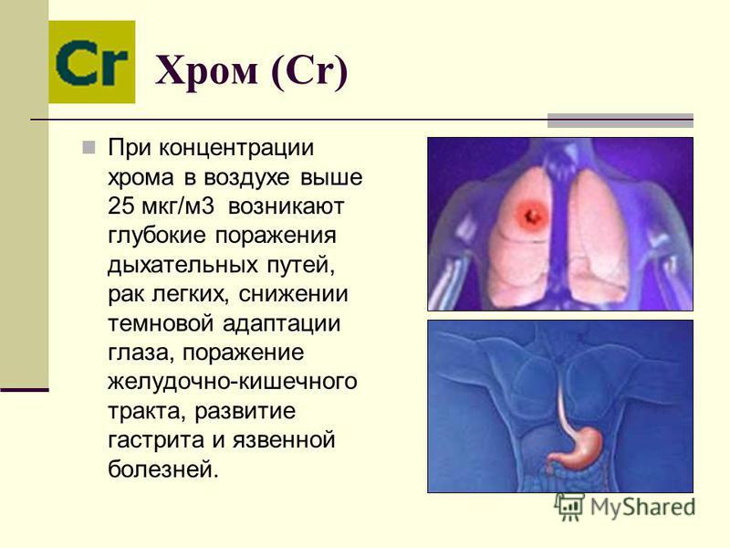 Хром (Cr) При концентрации хрома в воздухе выше 25 мкг/м 3 возникают глубокие поражения дыхательных путей, рак легких, снижении темновой адаптации глаза, поражение желудочно-кишечного тракта, развитие гастрита и язвенной болезней.