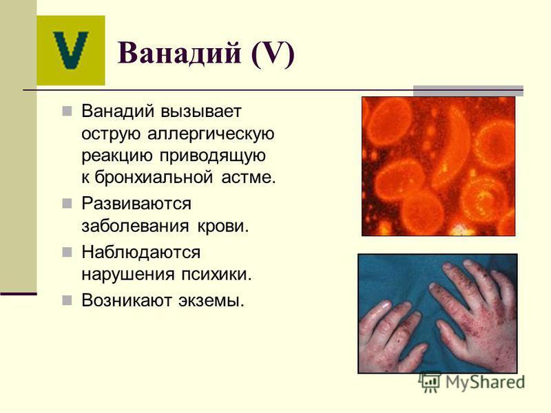 Ванадий (V) Ванадий вызывает острую аллергическую реакцию приводящую к бронхиальной астме. Развиваются заболевания крови. Наблюдаются нарушения психики. Возникают экземы.