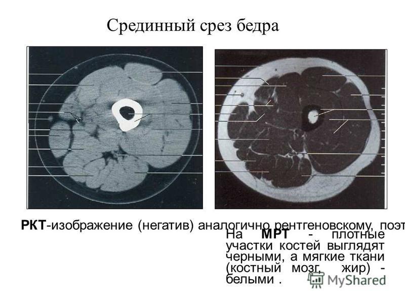 Пироговский срез бедра (анатомический музей)