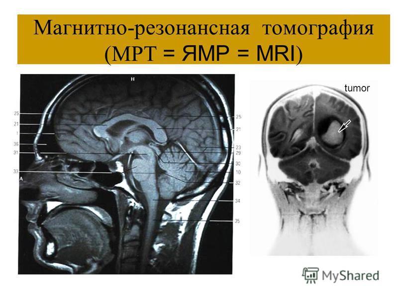 МРТ Компактное вещество костей – чёрное. Дифференцируется кора полушарий. РКТ Кости – белого цвета (как и на негативах рентгенененограмм). Кора – не различима.