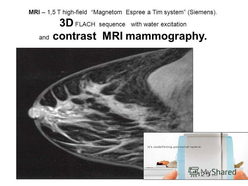 MRI – 1,5 T high-field Magnetom Espree a Tim system (Siemens). 3D
