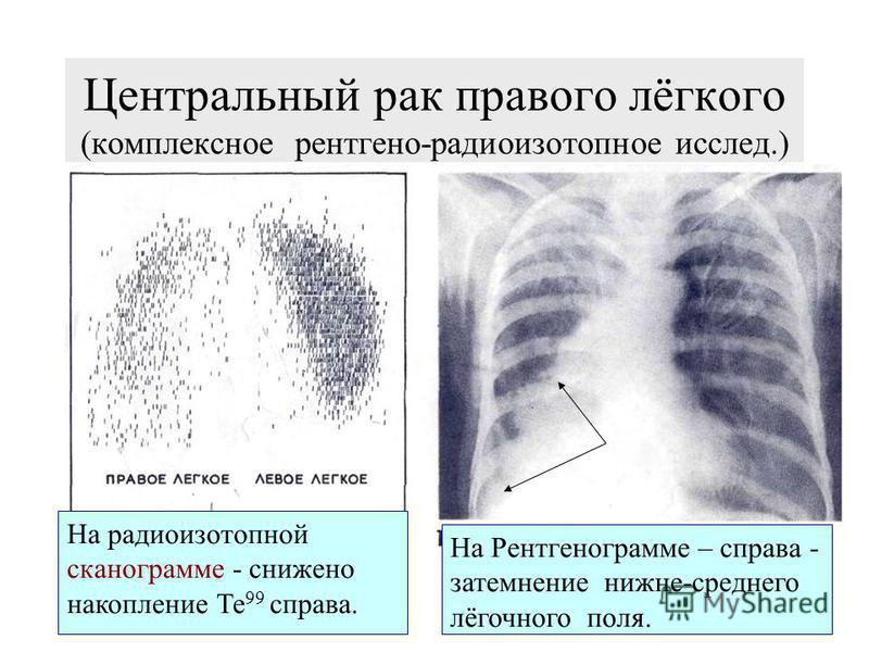 Радиоизотопная СКАНОГРАММА ЛЕГКИХ ( норма) Метод основан на временной микроэмболизации капилляров и артериол лёгких макроагрегатами альбумина, меченого I 131 или МААTc 99m, вводимого в/в в дозе 4 мккюри/кг. Для диагностики: опухолей, эмфиземы, пневмо
