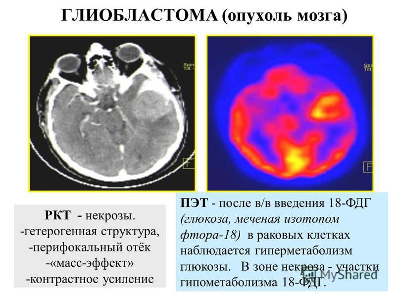 ПЭТ на кафедре рентгенененологии и радиологии Военно-медицинской академии. С.-Петербург, 2005.