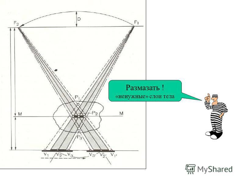 ТОМОГРАФИЯ линейная - способ получения послойного изображения органов на заданной глубине с помощью синхронно движущейся навстречу друг другу R-трубки и кассеты с плёнкой (по прямой, а чаще по дуге радиусом до 30 о. Все слои объекта, оказавшиеся даль