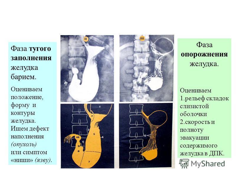 Селективная артериография – верхняя брыжеечная артерия
