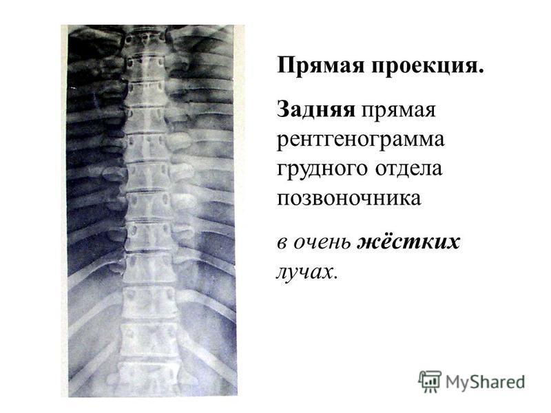 Axiom Aristos FX (Siemens) – Radiographic FD systems. Цифровая рентгенененограмма средней жёсткости.. Передняя прямая проекция.