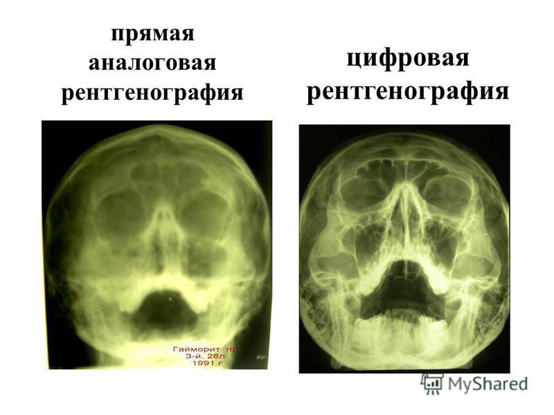 3. Цифровая рентгенененография - изображение представлено в виде цифровой матрицы (числовых строк). Единицей площади является пиксель. Если в обычной рентгенененографии пространственное разрешение определяется, гл. обр., зернистостью фотоматериалов и