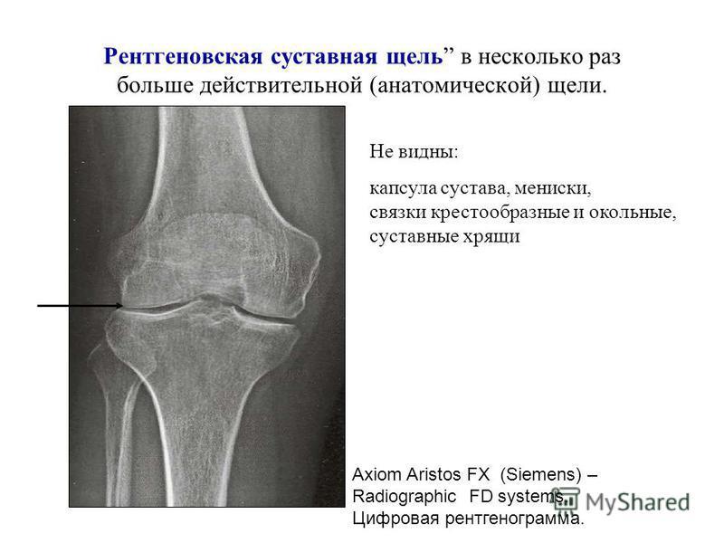Суставы – прерывные соединения Ширина анатомической суставной щели – 0.5-1 мм. Суставные поверхности покрыты R-прозрачным гиалиновым хрящом. Поэтому на снимке «рентгенененовская суставная щель в несколько раз больше действительной щели (от 1 до 9 мм)