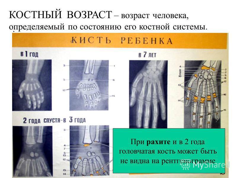 Рентгеновская суставная щель в несколько раз больше действительной (анатомической) щели. Axiom Aristos FX (Siemens) – Radiographic FD systems. Цифровая рентгенененограмма. Не видны: капсула сустава, мениски, связки крестообразные и окольные, суставны