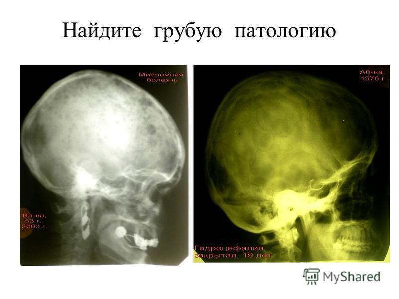 (Axiom Aristos FX (Siemens) – Radiographic FD systems.) Цифровая рентгенененограмма таза взрослой женщины. Эпифиз и апофиз уже синостозировали с диафизом бедра.