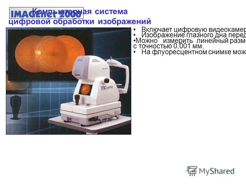 Передвижные рентгенененовские аппараты с С-дугой. Трехмерная 3D реконструкция в операционной Агсаdis Ог Ыс 3 D (Siemens)/ Изоцентричность движений С-дуги. Коронарный сосуды