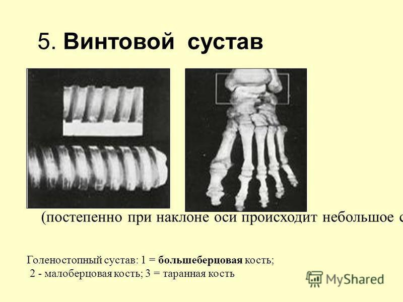 (постепенно при наклоне оси происходит небольшое спиральное смещение) Голеностопный сустав: 1 = большеберцовая кость; 2 - малоберцовая кость; 3 = таранная кость 5. Винтовой сустав