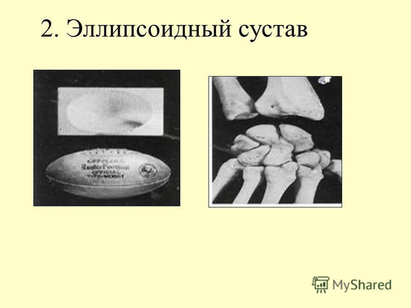 2. Эллипсоидный сустав