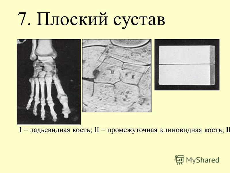 7. Плоский сустав I = ладьевидная кость; II = промежуточная клиновидная кость; III = латеральная клиновидная кость