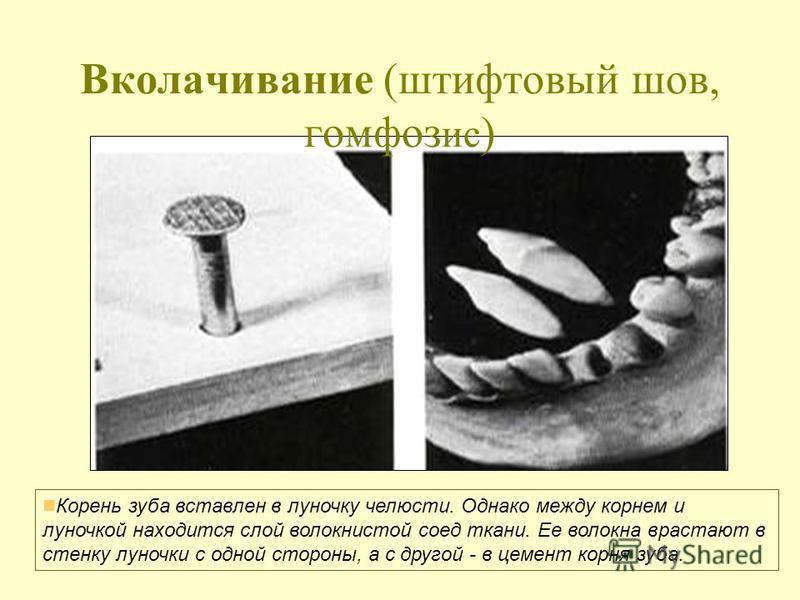 Вколачивание (штифтовый шов, гомфоз ис ) Корень зуба вставлен в луночку челюсти. Однако между корнем и луночкой находится слой волокнистой соед ткани. Ее волокна врастают в стенку луночки с одной стороны, а с другой - в цемент корня зуба.
