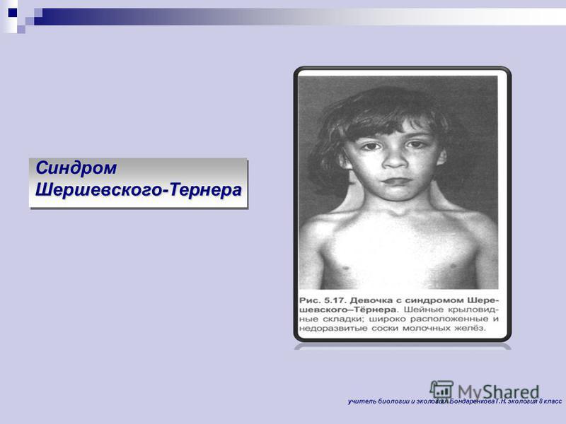Синдром Шершевского-Тернера Синдром Шершевского-Тернера