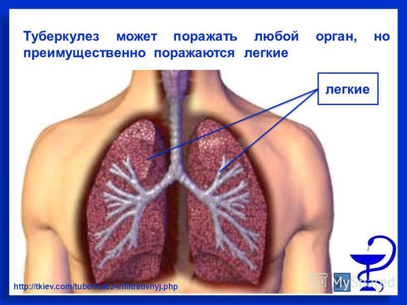Туберкулез может поражать любой орган, но преимущественно поражаются легкие http://tkiev.com/tuberkulez-infiltrativnyj.php легкие