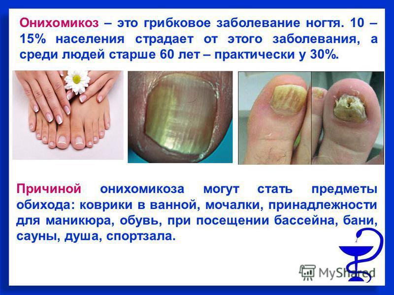 Онихомикоз – это грибковое заболевание ногтя. 10 – 15% населения страдает от этого заболевания, а среди людей старше 60 лет – практически у 30%. Причиной онихомикоза могут стать предметы обихода: коврики в ванной, мочалки, принадлежности для маникюра