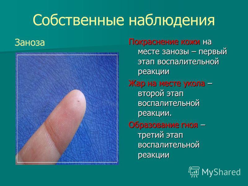 Собственные наблюдения Заноза Покраснение кожи на месте занозы – первый этап воспалительной реакции Жар на месте укола – второй этап воспалительной реакции. Образование гноя – третий этап воспалительной реакции