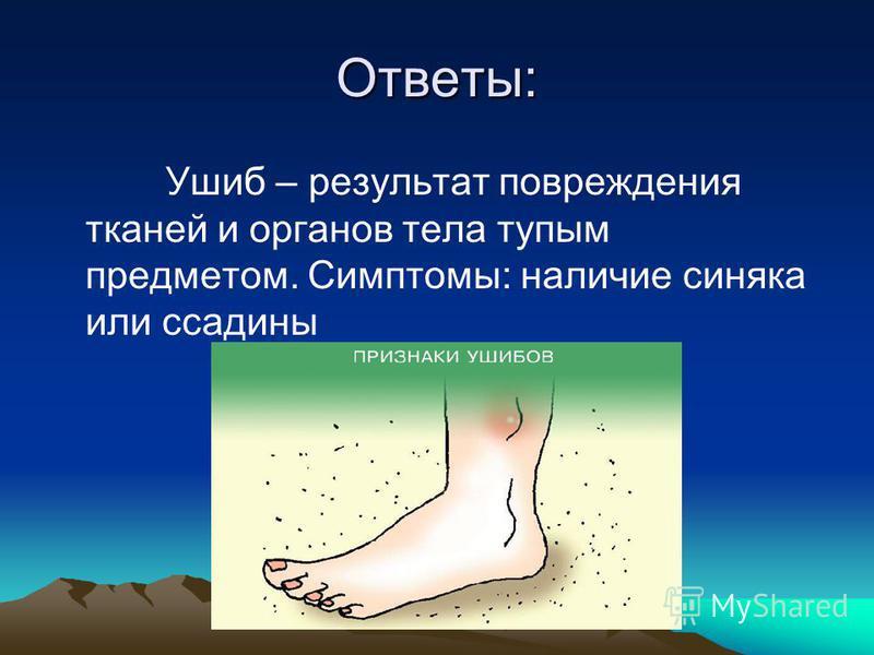 Ответы: Ушиб – результат повреждения тканей и органов тела тупым предметом. Симптомы: наличие синяка или ссадины