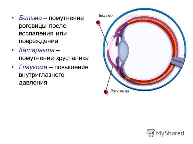 Бельмо – помутнение роговицы после воспаления или повреждения Катаракта – помутнение хрусталика Глаукома – повышение внутриглазного давления