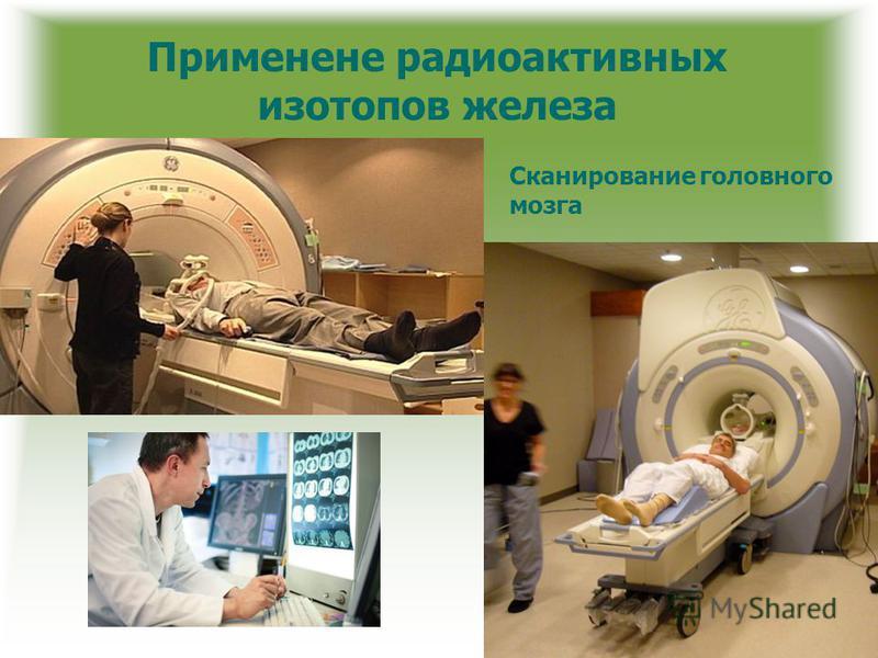 Применене радиоактивных изотопов железа Сканирование головного мозга