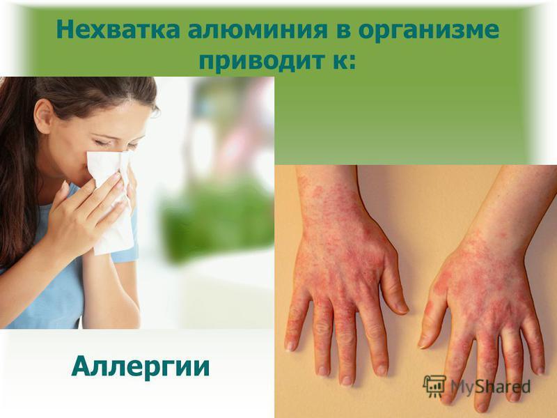 Нехватка алюминия в организме приводит к: Аллергии